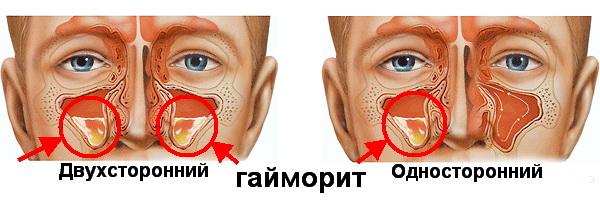 Контактный дерматит у ребенка лечение фото