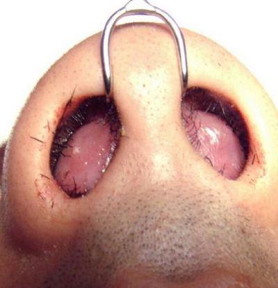 гематома и абсцесс перегородки носа
