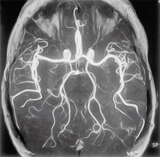 МРТ сосудов при арахноидите
