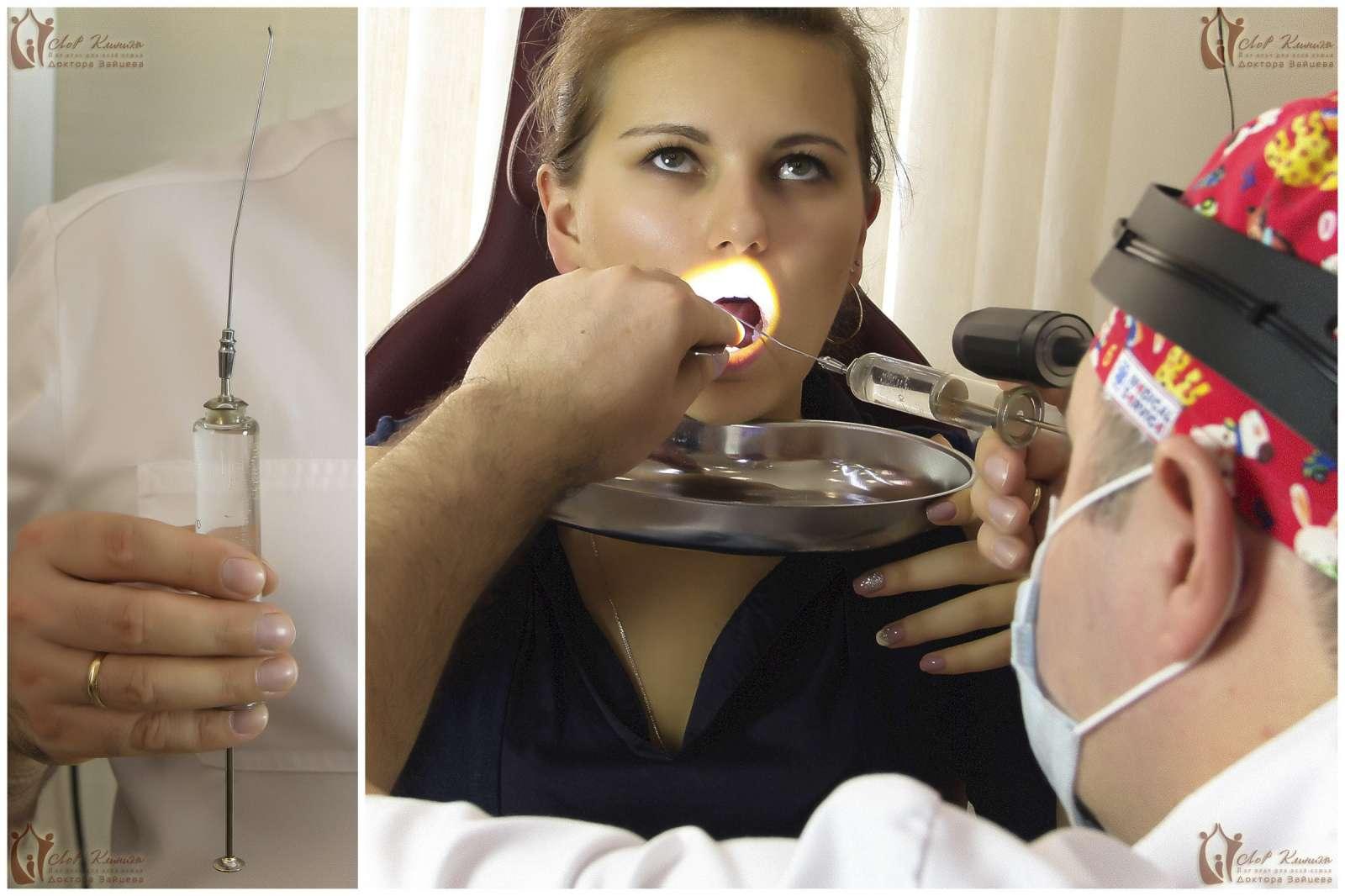 Фото горлового мінета, Порно фото глубокая глотка, кончают в глубокую глотку 26 фотография