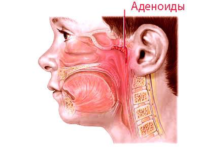 Народными средствами вылечить кашель у грудничка