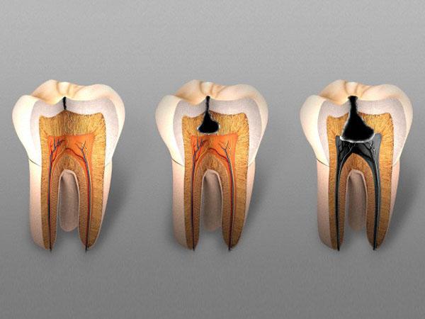 Если зуб чернеет что это такое
