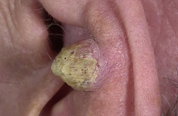 Лечение воспаления аденоидов у ребенка