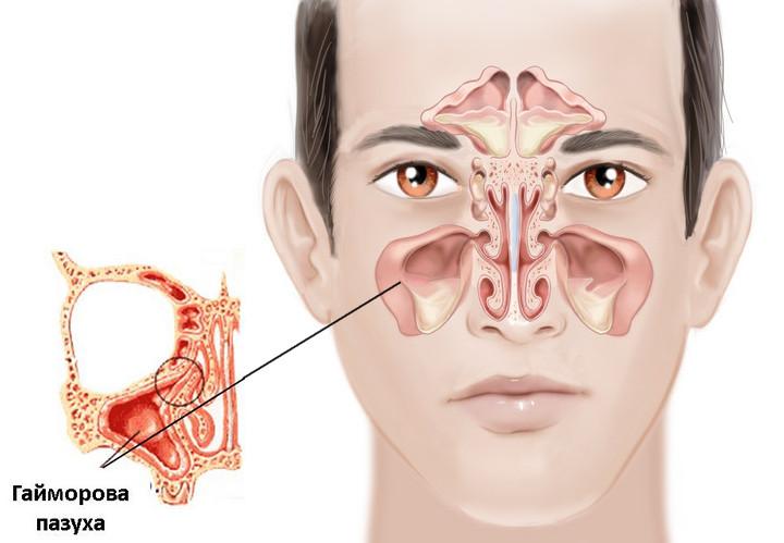 медицина запах изо рта причины